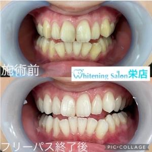 【歯ブラシの交換時期】