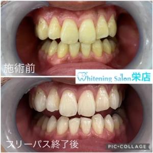 【歯のために良い生活週間をしよう】