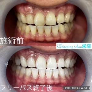 【歯と栄養について】