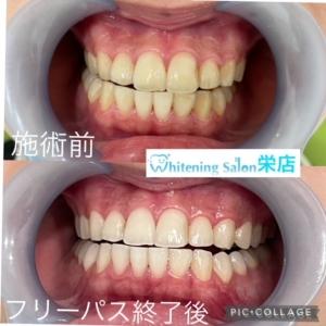 【歯周病の検査】